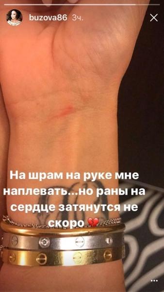 Ольга Бузова рассказала о душевной боли после предательства Дмитрия Тарасова (ФОТО) - фото №1