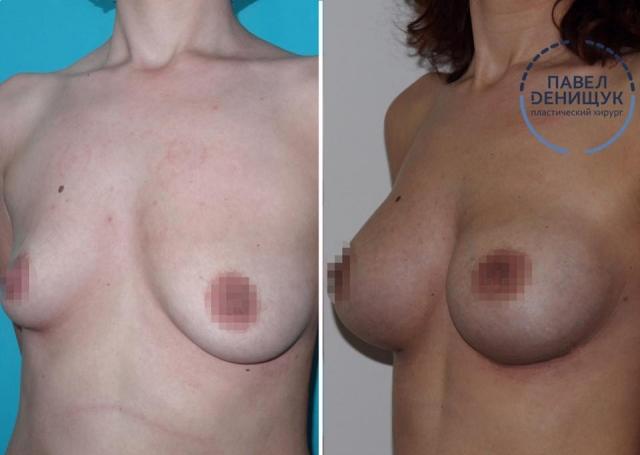 Тонкости липосакции, увеличения груди и другие волнующие вопросы в интервью с пластическим хирургом - фото №4