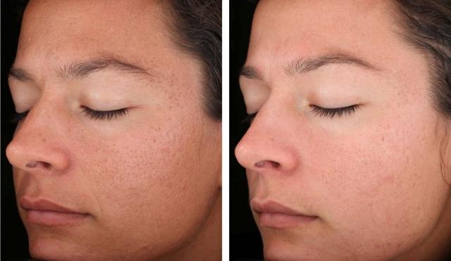 """Очищение кожи холодом: криопилинг как новая процедура """"чистки"""" лица - фото №2"""
