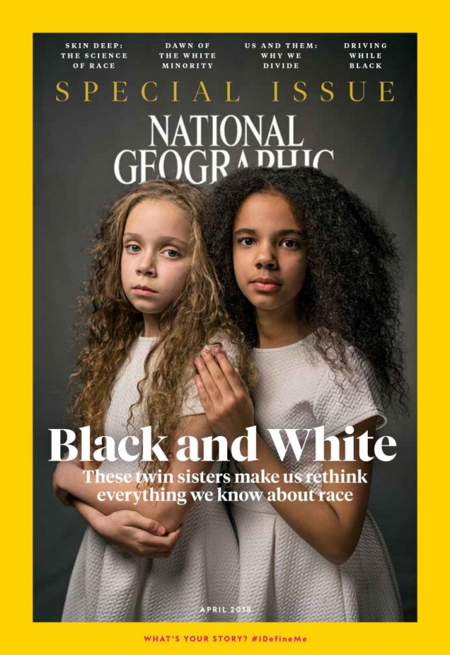 Близнецы с разным цветом кожи на обложке National Geographic - фото №1