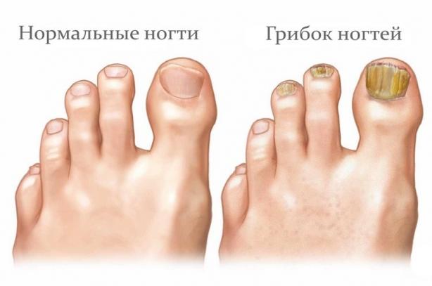 Как побороть грибок ногтей и начать носить открытую обувь без стеснения - фото №2