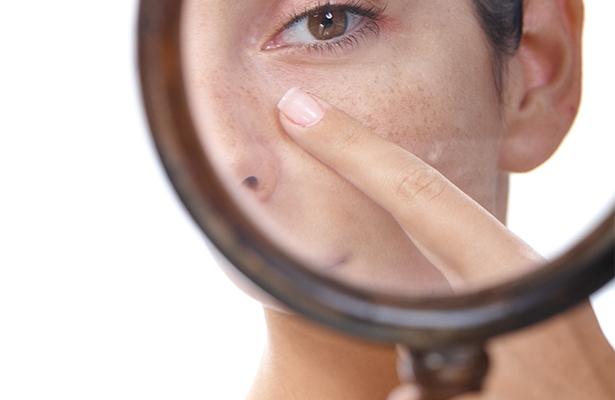 Как сузить расширенные поры на лице