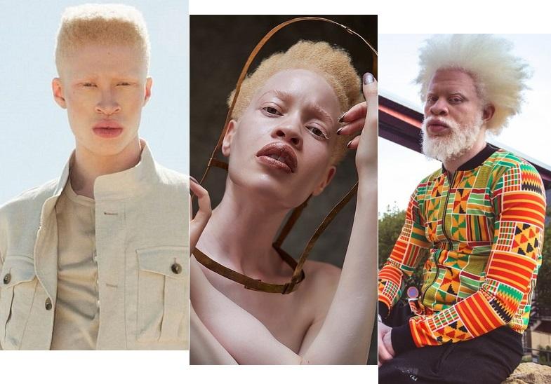 Международный день распространения информации об альбинизме: известные
