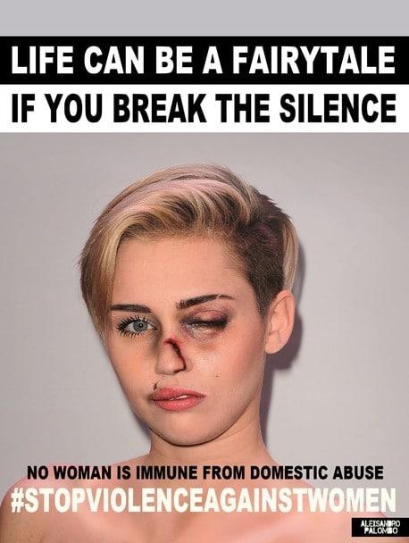 Кто избил Анджелину Джоли и Мадонну: шокирующие фото звезд - фото №3