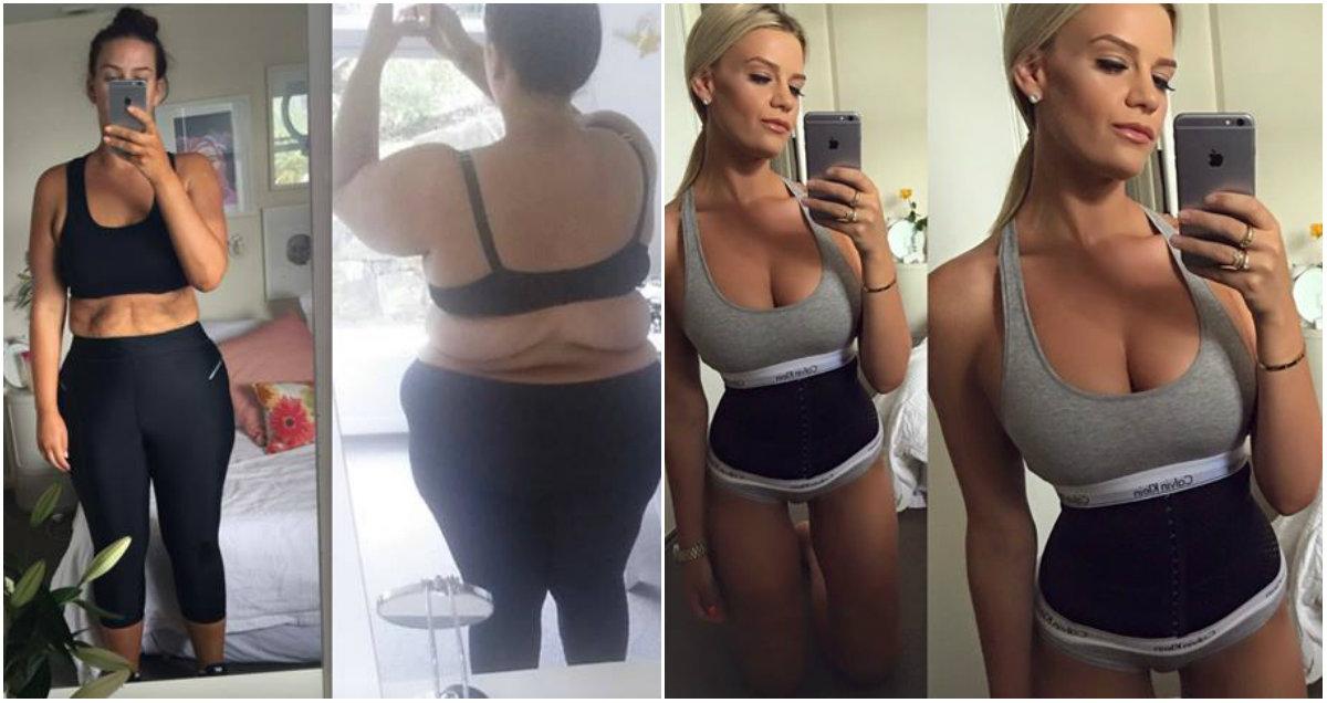 Что стоит за похудением на 92 килограмма: уродливая обвисшая кожа и нетерпимость людей - фото №1
