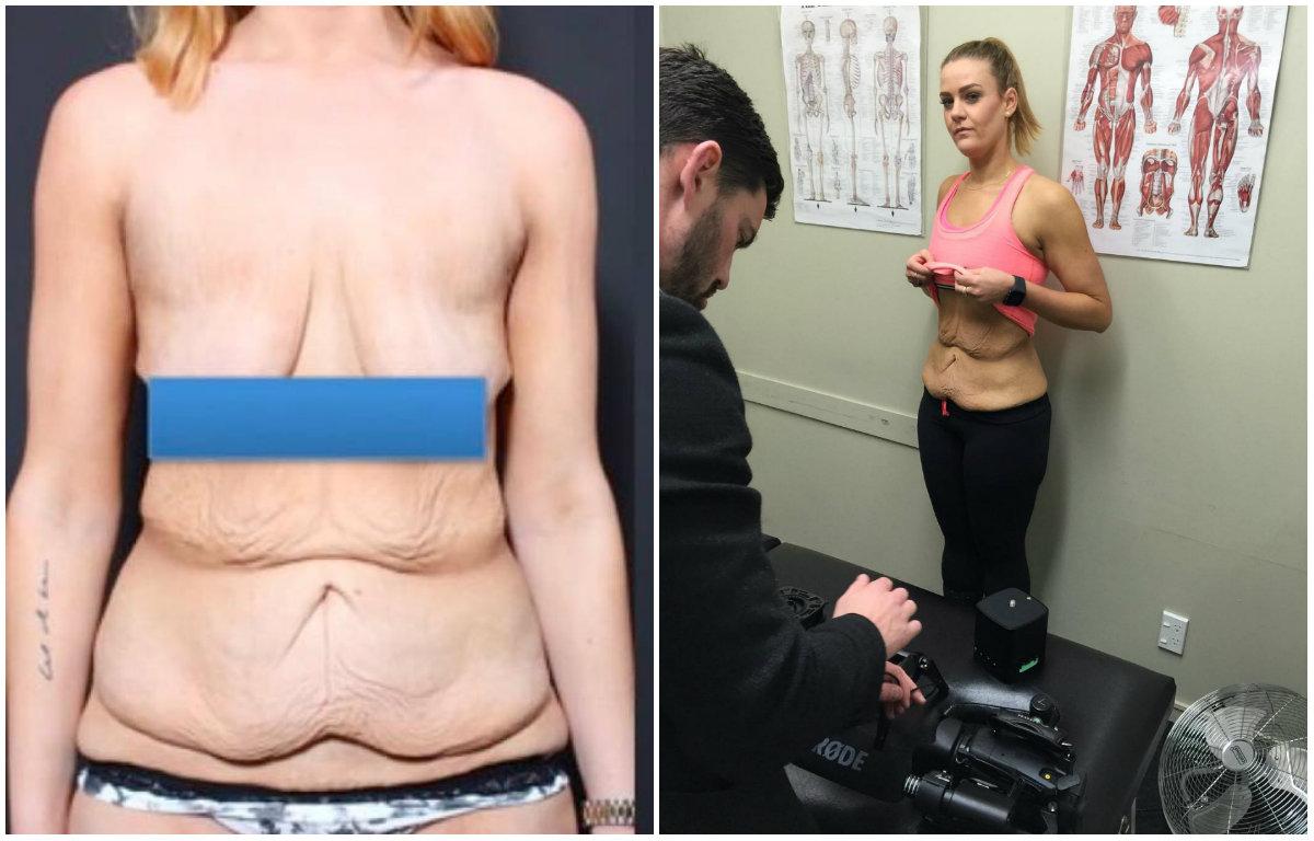 Что стоит за похудением на 92 килограмма: уродливая обвисшая кожа и нетерпимость людей - фото №2