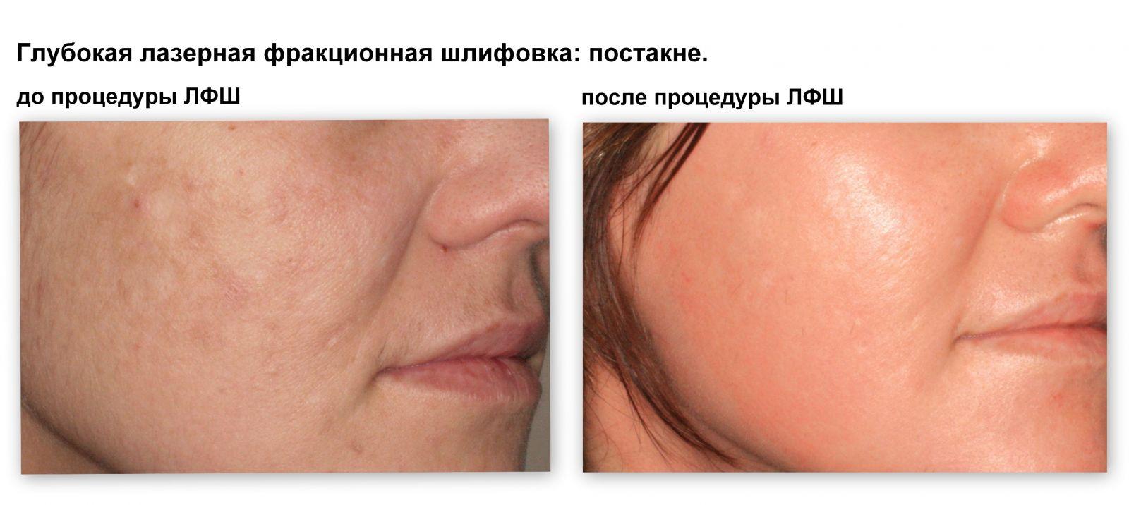 Омоложение кожи: лазерная фракционная шлифовка - фото №2