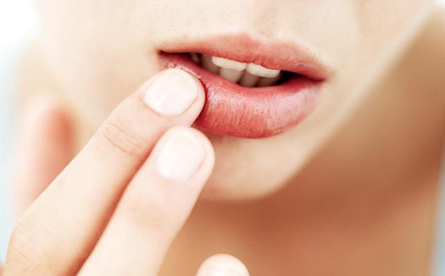Какими простыми средствами увлажнить сухие губы - фото №2