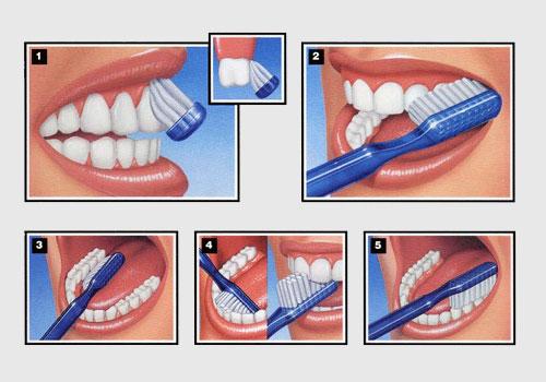 Топ 10 способов отбелить зубы в домашних условиях - фото №1