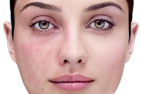 Уже не проблема: как убрать сосудистую сетку на лице (купероз) - фото №3