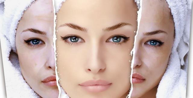 Очищение кожи весной: 5 видов эффективного химического пилинга - фото №2