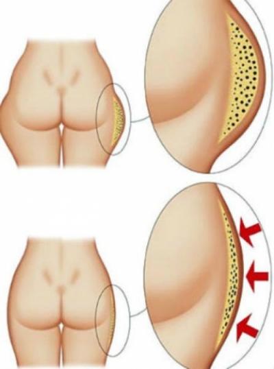 Ушки на бедрах: эффективные упражнения, которые помогут избавиться (+ВИДЕО) - фото №1
