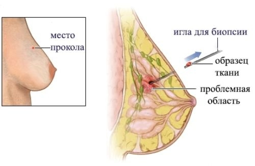 трепан-биопсия