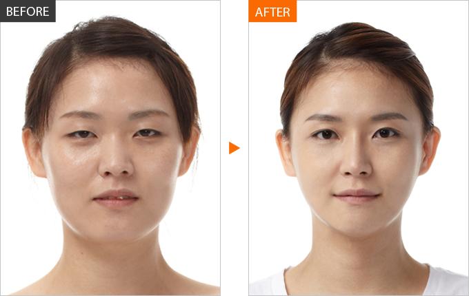 Как омолодить лицо с помощью массажа - фото №1