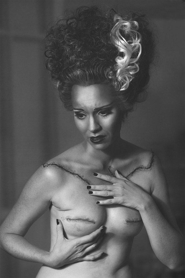 рак груди фотопроект