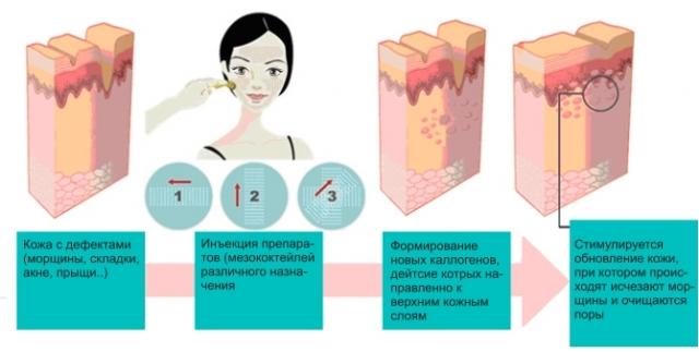 мезококтейль и мезотерапия