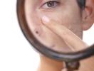 Как сузить поры на коже: 10 простых способов