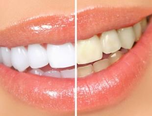 Топ 10 способов отбелить зубы в домашних условиях