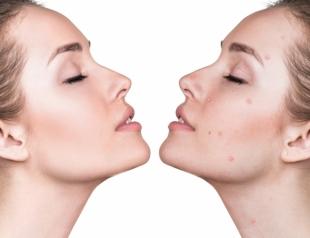 Очищение кожи весной: 5 видов эффективного химического пилинга