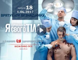 «Я соромлюсь свого тіла» 4 сезон: 18 выпуск от 01.06.2017 смотрите онлайн ВИДЕО
