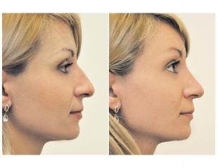 Исправь форму носа или все, что необходимо знать про ринопластику