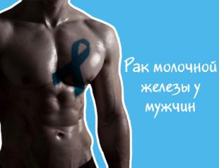 Рак молочной железы у мужчин: особенности редкого заболевания