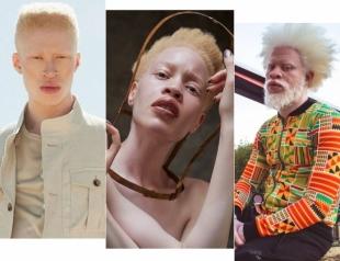Международный день распространения информации об альбинизме: известные люди, доказавшие, что альбинизм — это уникальность