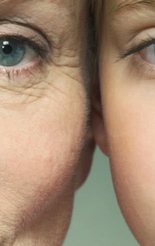 О каких заболеваниях расскажут морщины