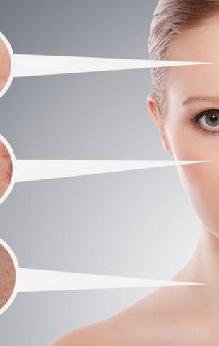 Как избавиться от прыщей с помощью макияжа