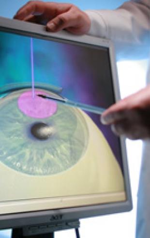 Лазерная коррекция зрения: бояться не стоит, делать