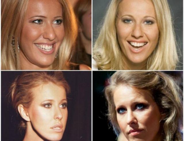 Кто из российских знаменитостей сделал пластику носа? Фото