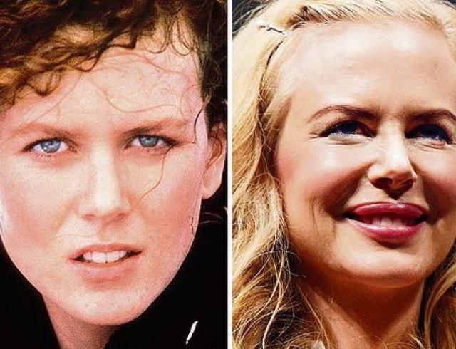 Какие пластические операции делали Дженнифер Лопес и Леди Гага