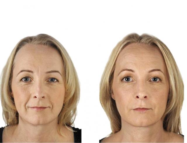 Сколько нужно процедур фотоомоложение лазерное омоложение лица в екатеринбурге медицинские центры цены
