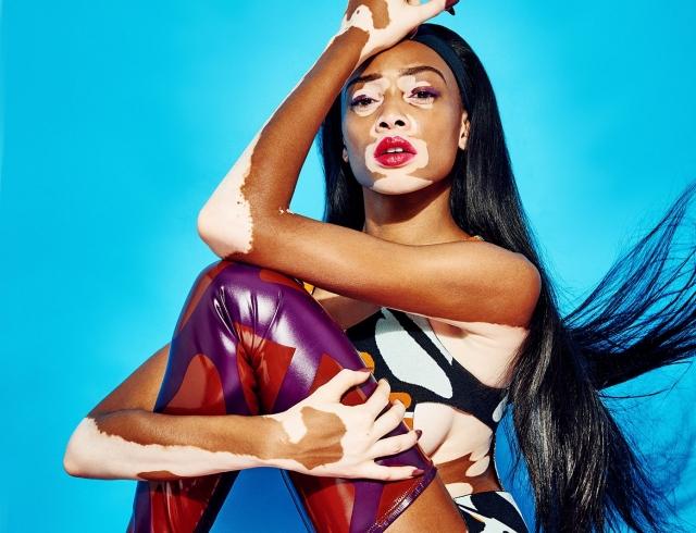 """Новым """"ангелом"""" Victoria's Secret стала модель с витилиго Винни Харлоу"""